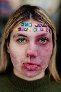 Юлия Шестых: «Однажды я решила, что пора перестать прятать своё пятно на лице и стесняться его»